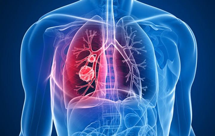 Nuevas guías clínicas GOECP/SEOR de radioterapia en cáncer de pulmón, timoma y mesotelioma
